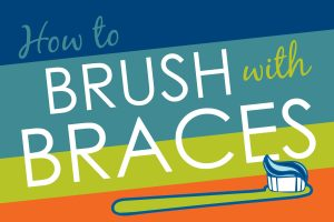 How to Brush with Braces Epic Orthodontics